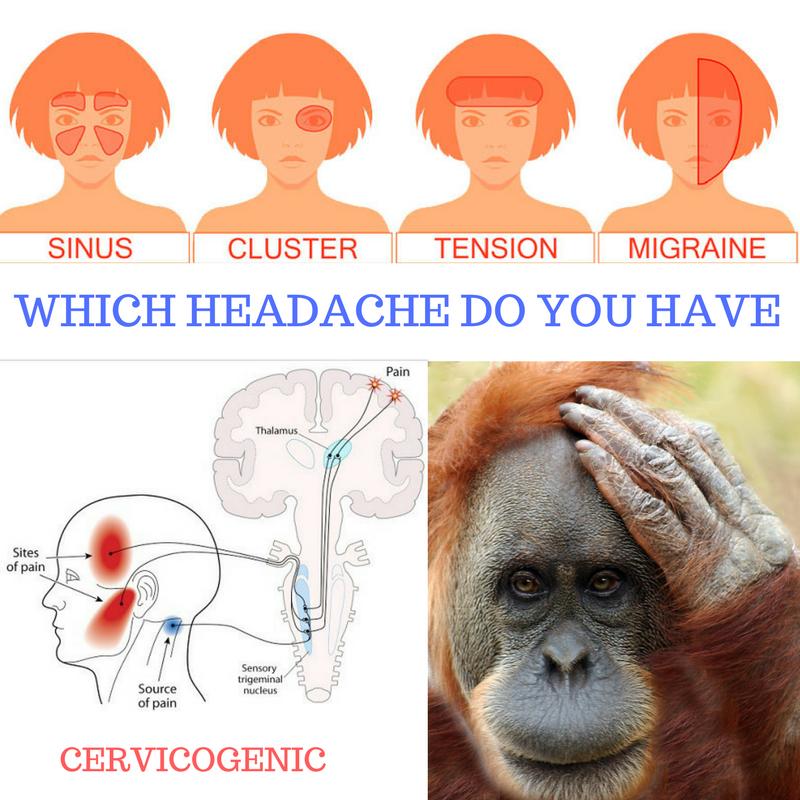 headache graphic